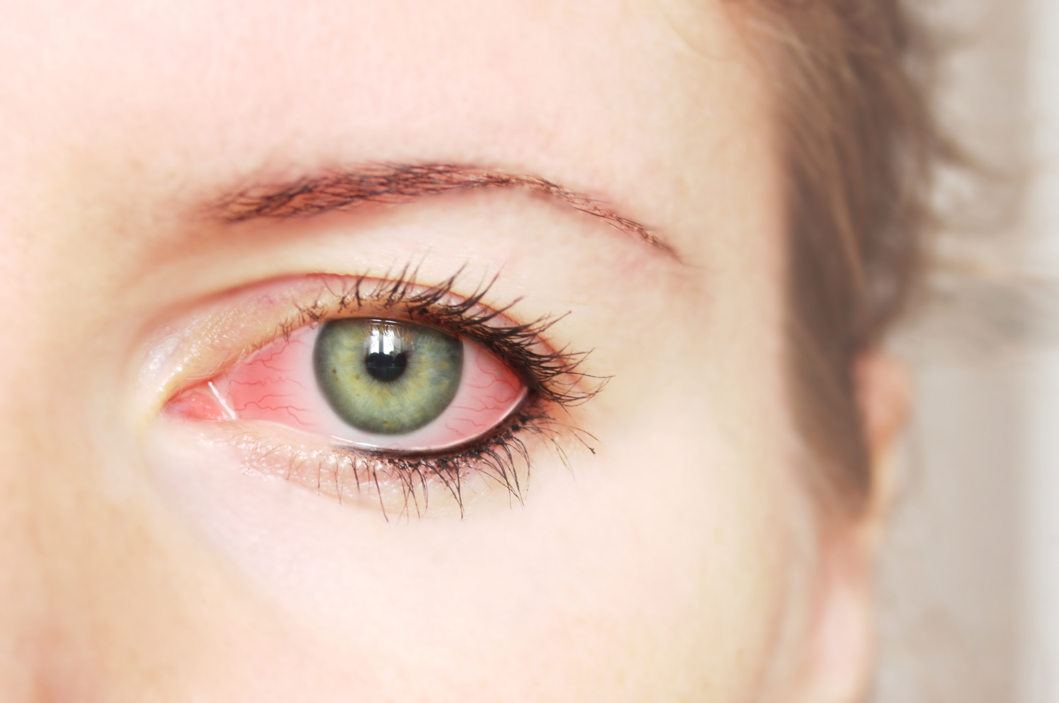 7 tips bij allergie op je ogen