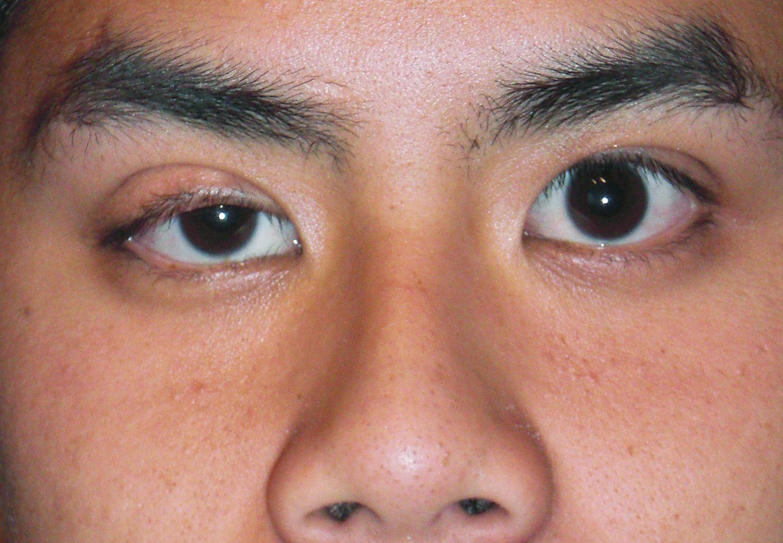 Hangende oogleden: van natuurlijke oefeningen tot ooglidcorrectie